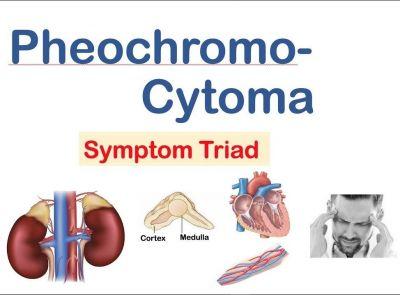 Báo cáo về case U tụy thượng thận (Pheochromocytoma)