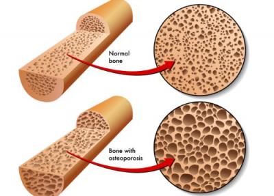 Đo mật độ loãng xương