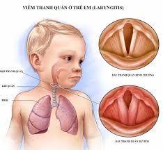 Bệnh Viêm Thanh Quản Cấp ở Trẻ Em